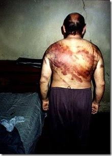Torturas en Irak 2